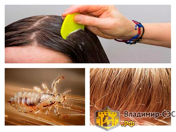 как избавиться от вшей в волосах